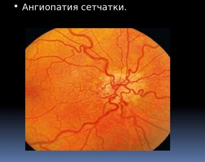 Что такое ангиопатия сетчатки глаза: причины, симптомы и особенности лечения - sammedic.ru