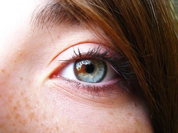 Центральная гетерохромия (два разных цвета глаз): причины и виды - 2020