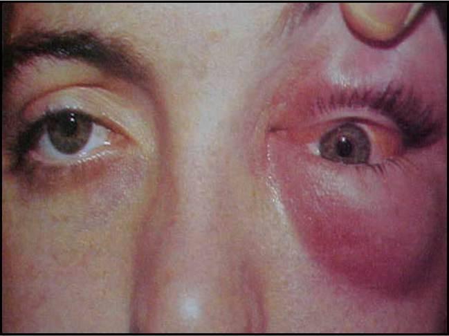 Флегмона глаза — причины, симптомы флегмоны глазницы, века, слезного мешка, диагностика и лечение - я здоров
