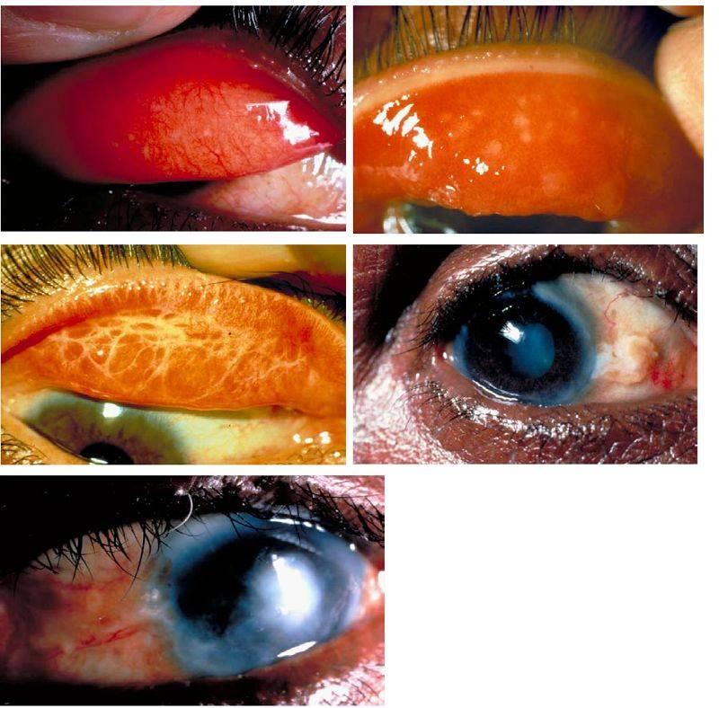 Хламидийный конъюнктивит: симптомы и лечение — фото хламидийного конъюнктивита
