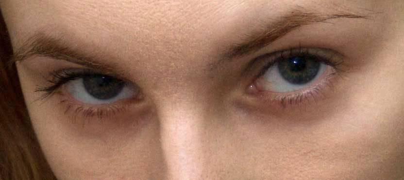 Пять возможных причин синяков под глазами — новости барановичей, бреста, беларуси, мира. intex-press