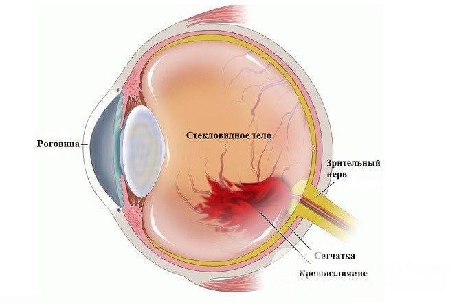 Гемофтальм код по мкб 10: лечение левого и правого глаза у взрослых