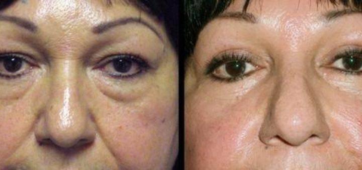 Грыжи под глазами, и как их лечить без операций