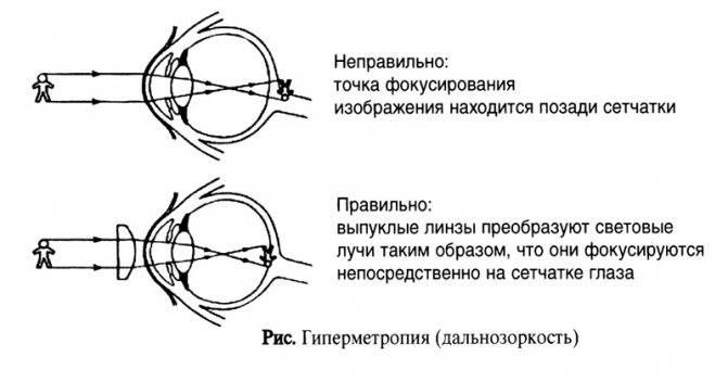 Контактные линзы при дальнозоркости: какие лучше выбрать для коррекции зрения