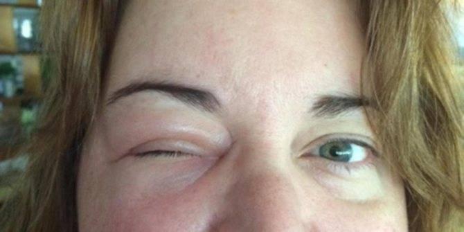 Чем опасен аллергический отек глаз и как его снять?