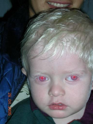 Альбинизм: почему ученые до сих пор не могут объяснить этот феномен