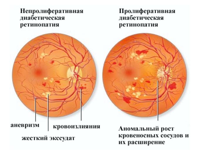 Ретинопатия глаз: диабетическая, фоновая, недоношенных, посттромбическая