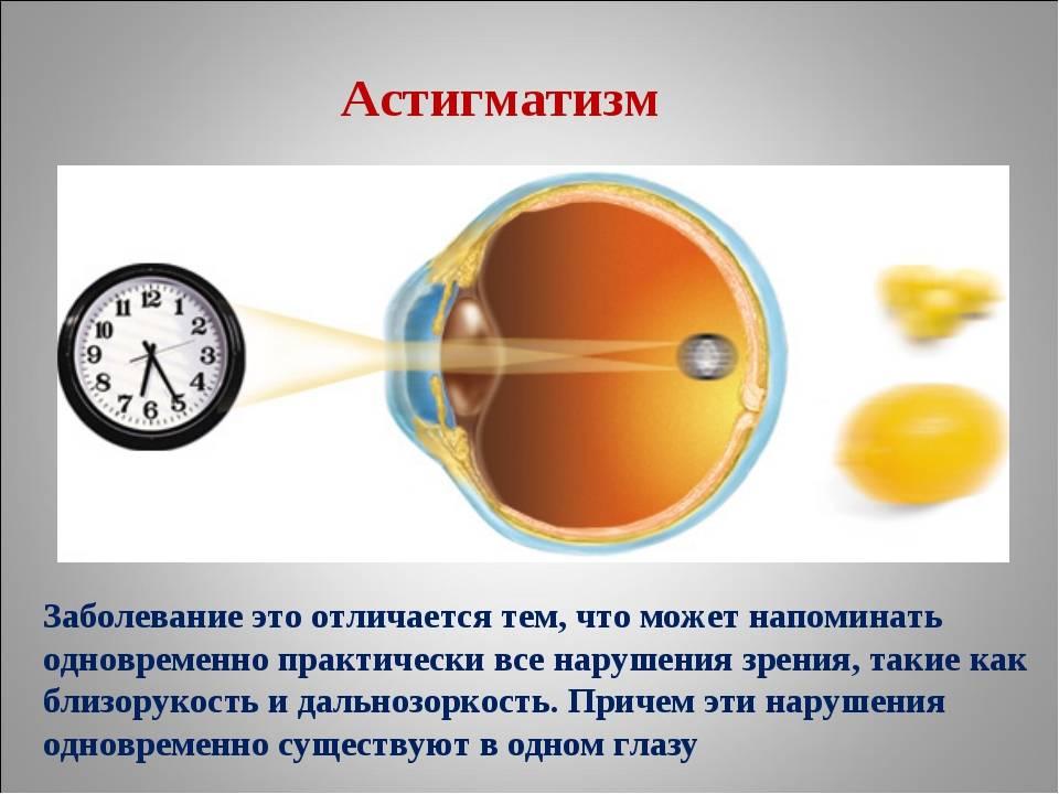 Миопический астигматизм у детей: причины, симптомы и лечение — глаза эксперт