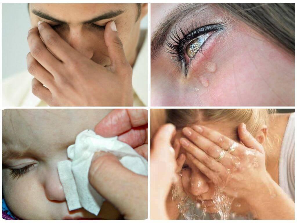 Снять отек с глаз после слез – реальные советы