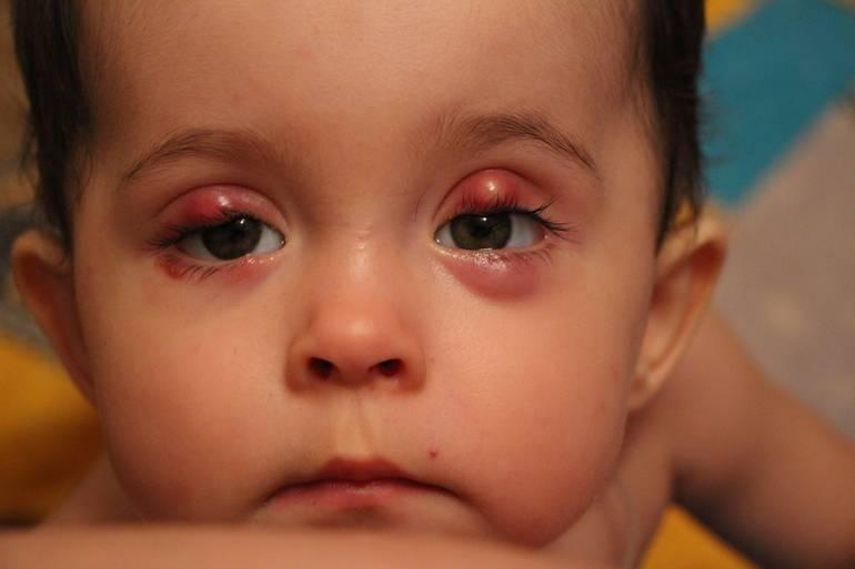 Что означают красные пятна на веках у новорожденного и как их лечить