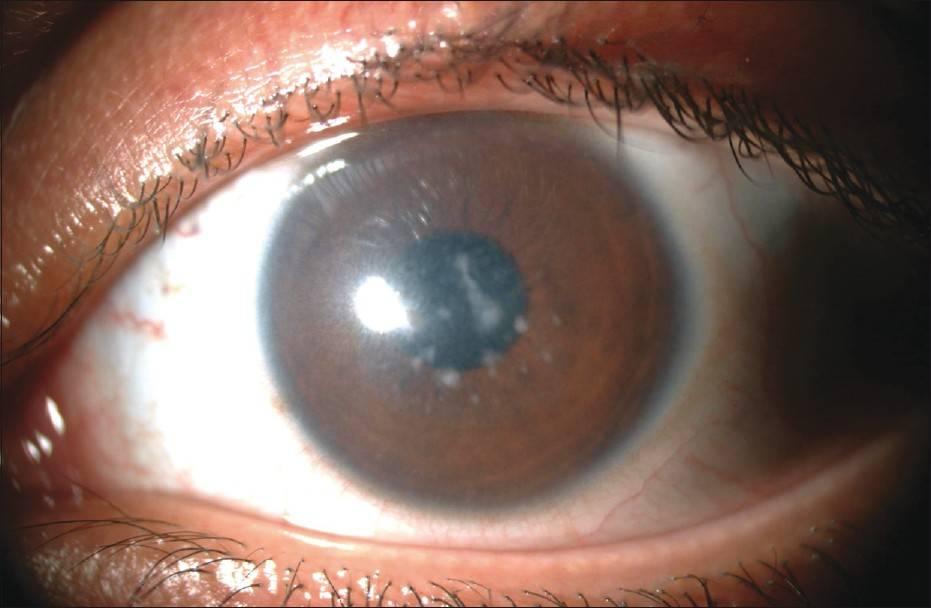 Бельмо на глазу у человека