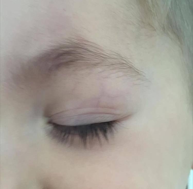 Красное пятно на веке у новорожденного (сосуды, прыщики под и над глазами): о чем говорит симптом и что делать родителям грудничка?