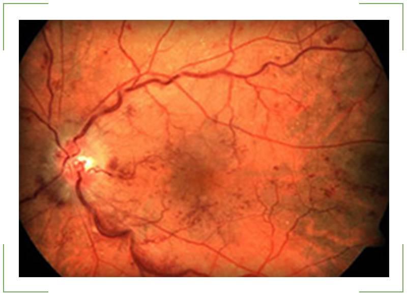 Макулярный отек сетчатки глаза – причины и лечение