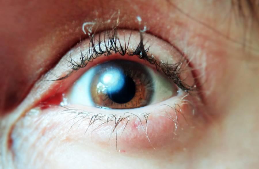 Как убрать «лунный диск», затмивший зрение? борьба с бельмом, лечение в клинике и дома
