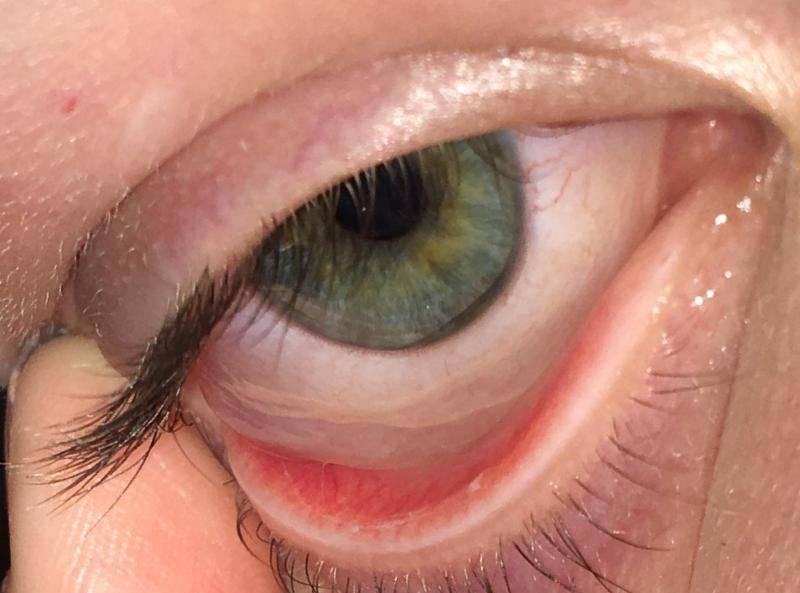 Что делать если ячмень сильно чешется. почему ячмень на глазу чешется — все о проблемах с глазами