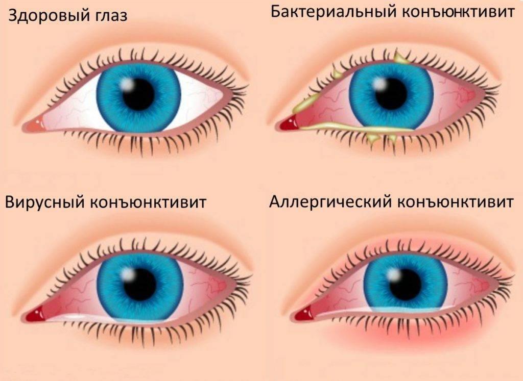 По утрам закисают глаза что делать - wikimedportal.ru