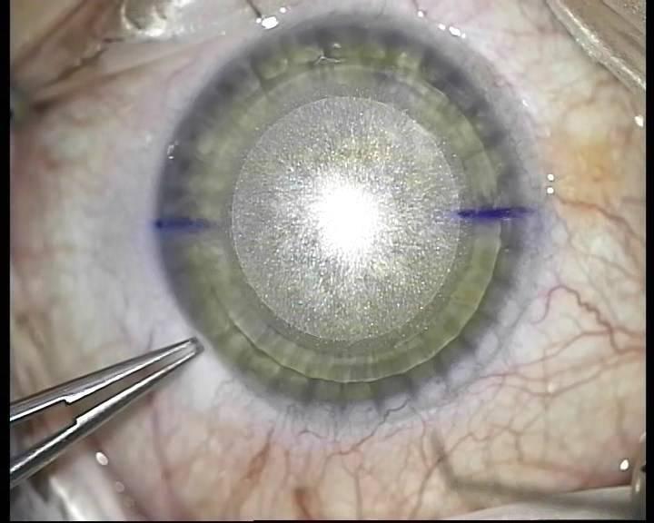 Восстановление после лазерной коррекции зрения: как быстро восстановиться зрение после ласик, реабилитационный период после операции при катаракте