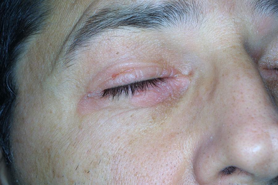 Дерматит под глазами и на веках - причины, лечение (+фото)