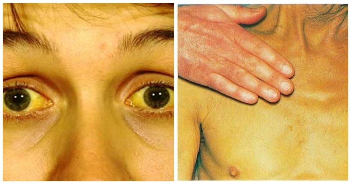 Склерит: как распознать и вылечить патологию глаз