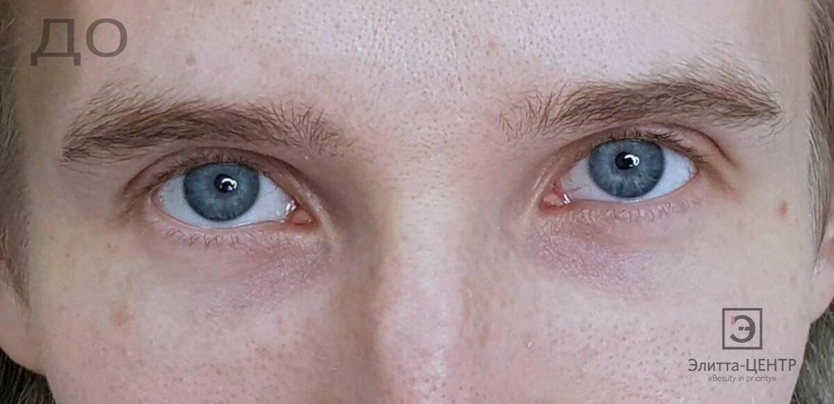 Круги перед глазами: причины, лечение, профилактика oculistic.ru круги перед глазами: причины, лечение, профилактика