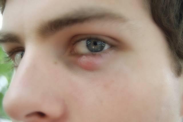 Болит нижнее веко глаза