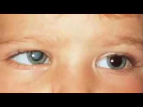 Катаракта: причины, симптомы, лечение и профилактика, врожденная