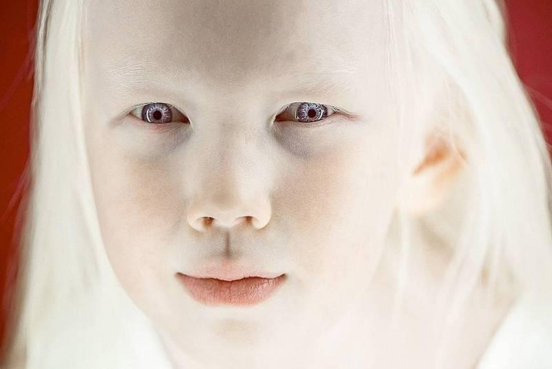 Люди альбиносы: особенность и возможные последствия
