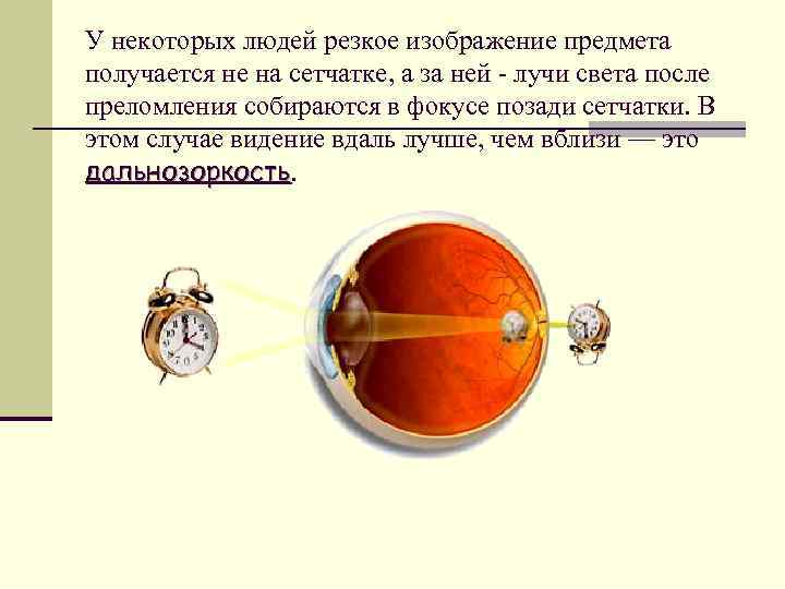 Спрашиваем офтальмолога: близорукость — это минус или плюс?