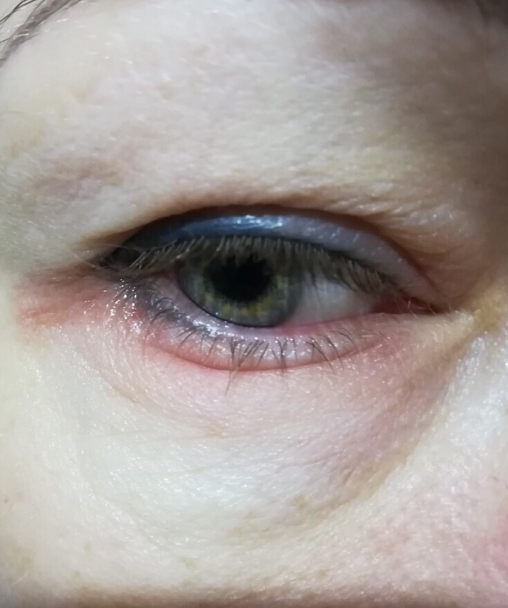 Трещины и шелушение кожи вокруг глаз - причины и лечение