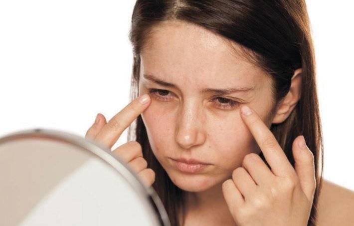 Как привести глаза в порядок – 20 способов от отеков после слёз