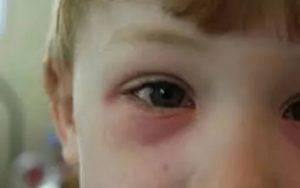 Причины и методы лечения покраснений век у детей
