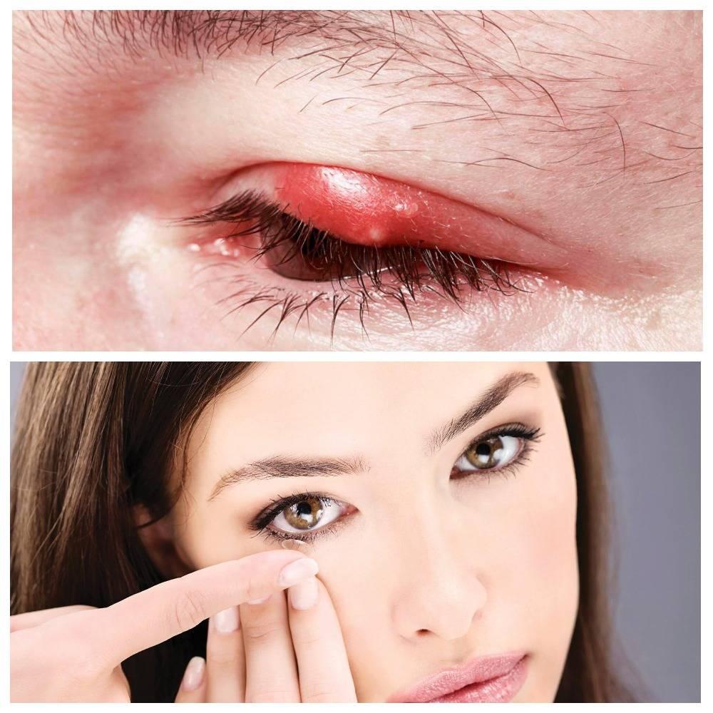 И с глаз долой! как правильно лечить внутренний ячмень?
