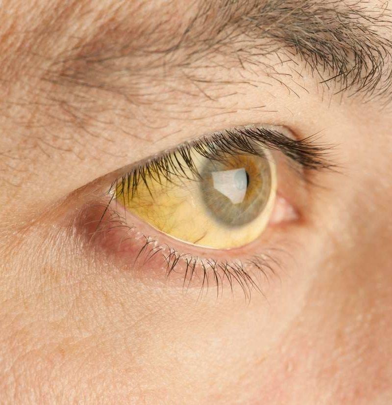 Голубой белок глаза что означает. почему у ребенка серые белки глаз