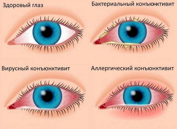 Покраснение глаз при простуде причины и лечение