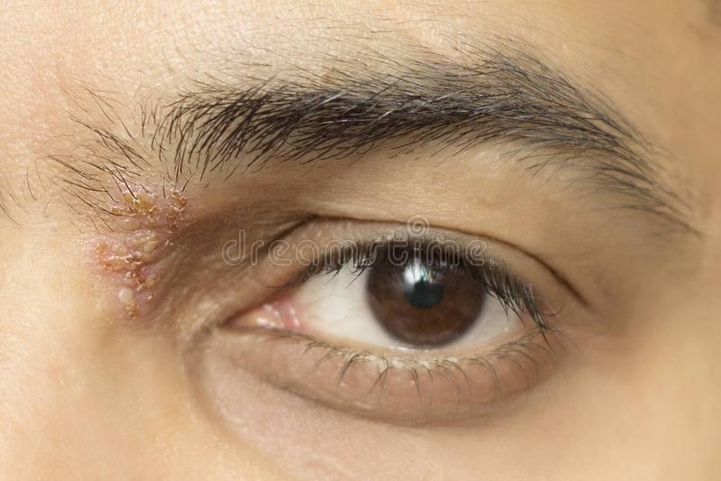 Герпес на глазу. опасность, лечение, профилактика