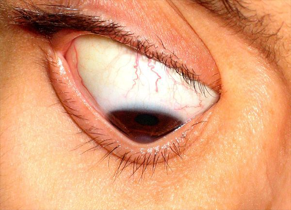 Кератоконус - описание, симптомы, лечение
