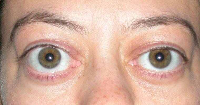 Экзофтальм - симптомы болезни, профилактика и лечение экзофтальма, причины заболевания и его диагностика на eurolab