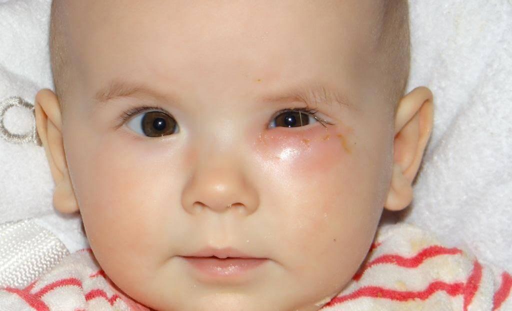 Красные глаза у новорожденного - причины, последствия, лечение