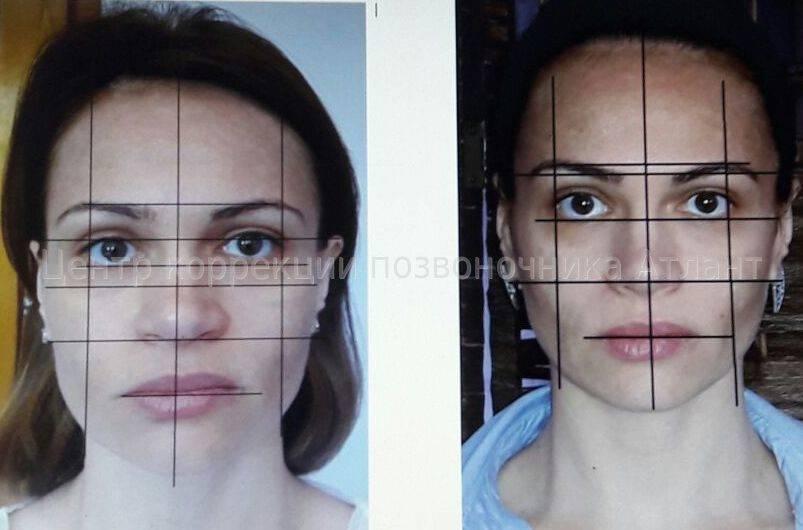Асимметрия лица: как исправить её с помощью метода starecta