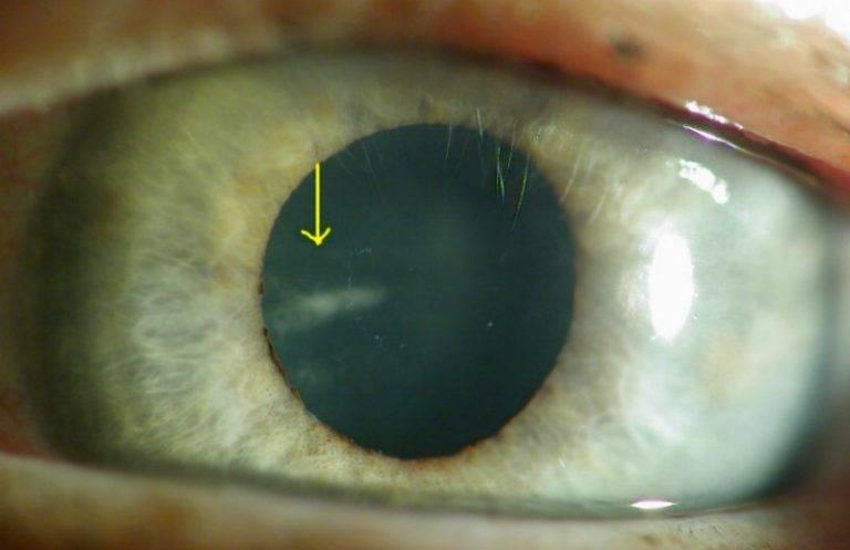 Что такое возрастная катаракта – как ее лечить