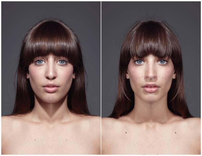 Почему лицо не симметрично, как исправить дефекты