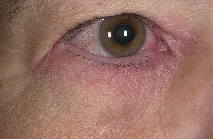 Дерматит век лечение - лечим аллергию