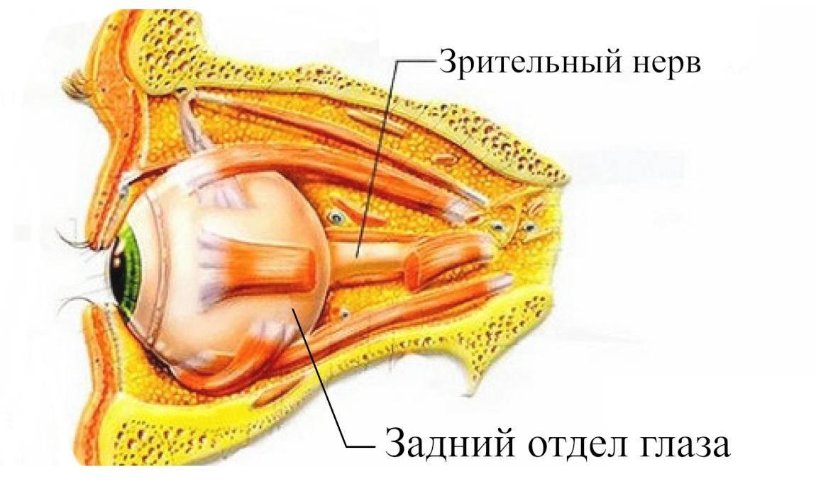 Алкоголизация зрительного нерва при глаукоме