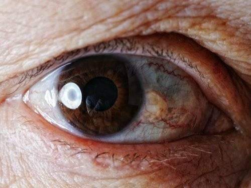 Пингвекула глаза и её лечение (капли и операция по удалению)
