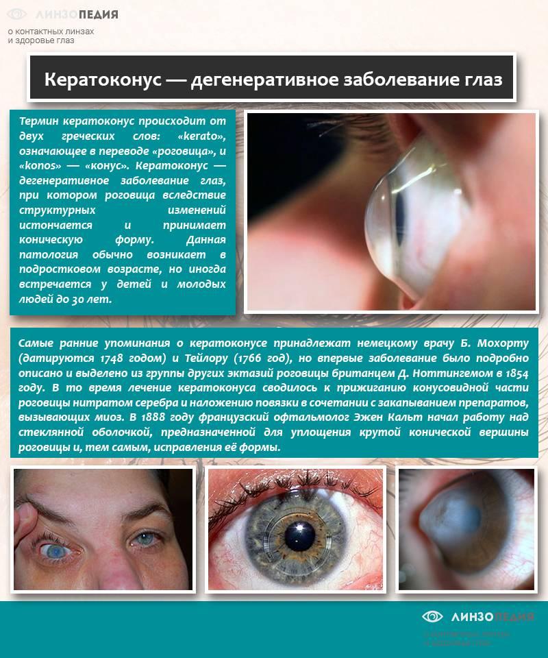 Кератоконус - что это такое, причины, симптомы и лечение
