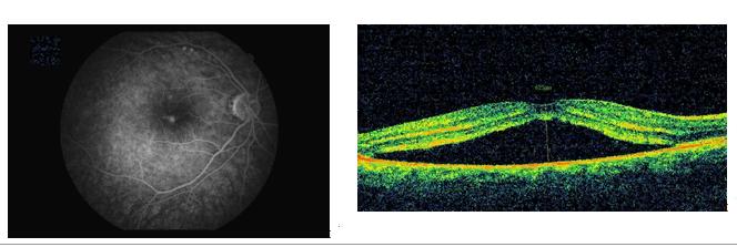 Центральная серозная хориоретинопатия: лечение, причины, симптомы, диагностика, прогноз, профилактика