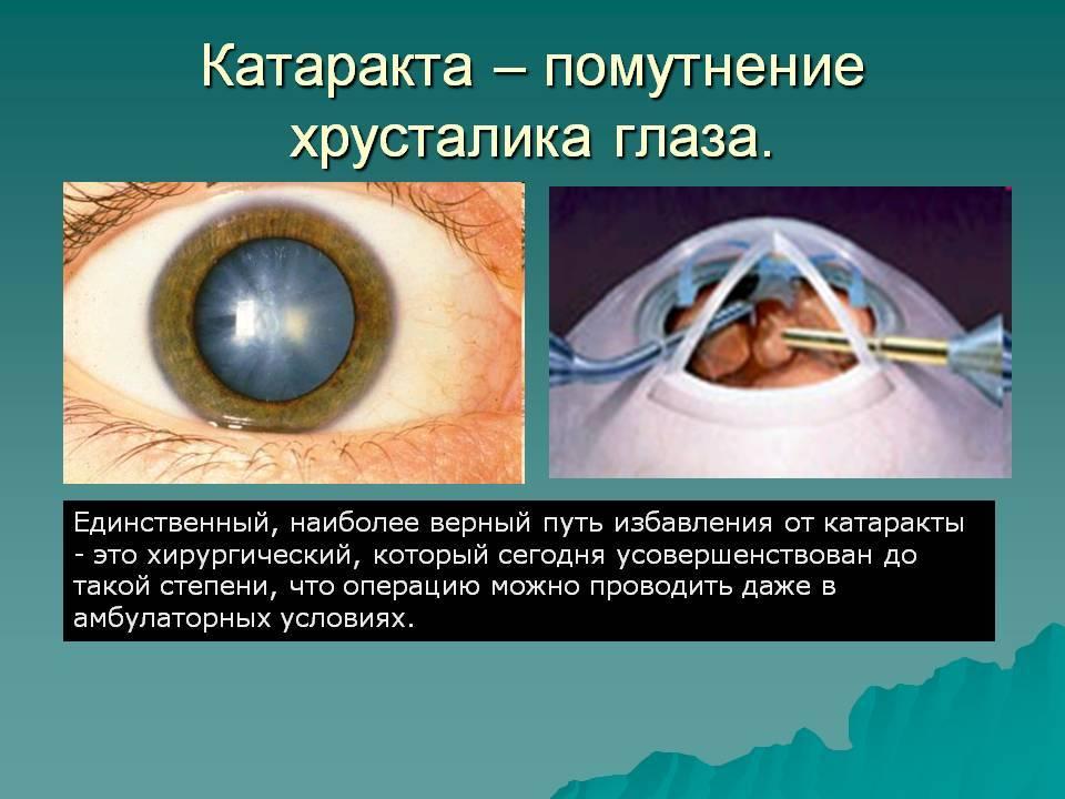 Лечение катаракты без операции, глазные капли, народные рецепты
