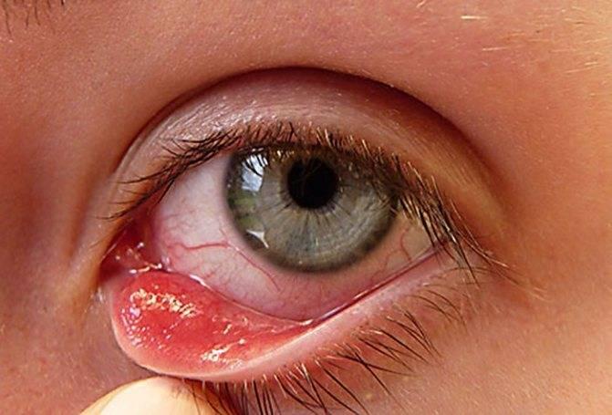 Гиперемия конъюнктивы: причины и лечение покраснения белка глаза и воспаления, как снять, чем лечить
