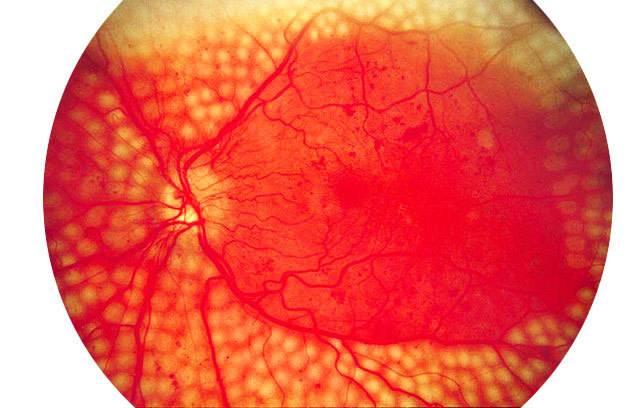 Особенности фоновой ретинопатии и ретинальных сосудистых изменений: симптомы и лечение