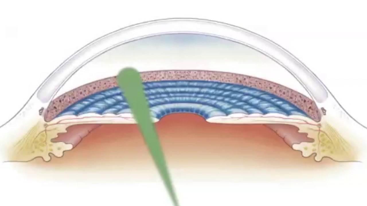 Слт – селективная лазерная трабекулопластика